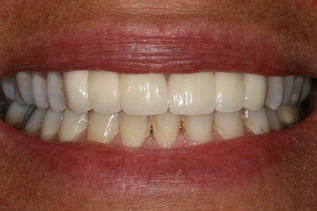 10038 Before and After Dental Bridges