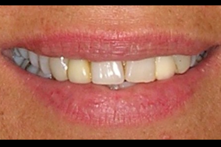 10038 Before and After Dental Crowns