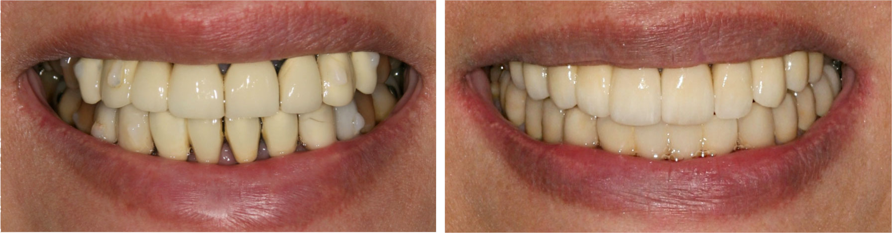 Financial District Before and After Teeth Whitening