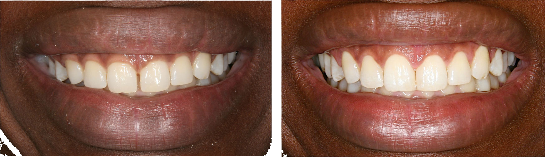 Before and After Teeth Whitening in Financial District