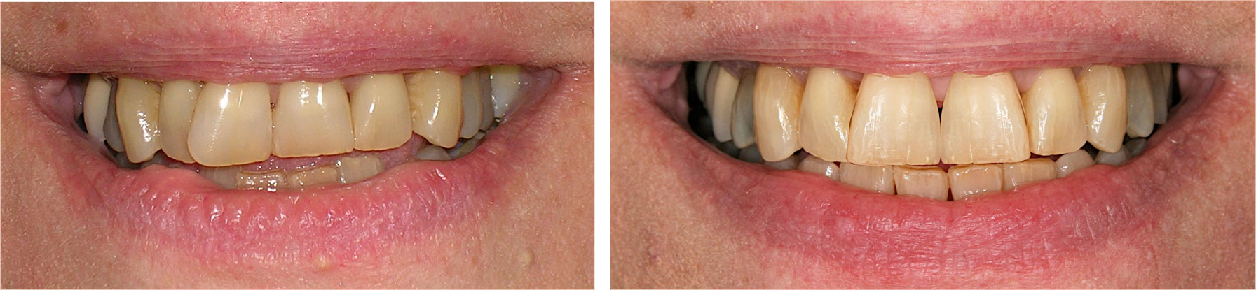 Before and After Dental Fillings Financial District