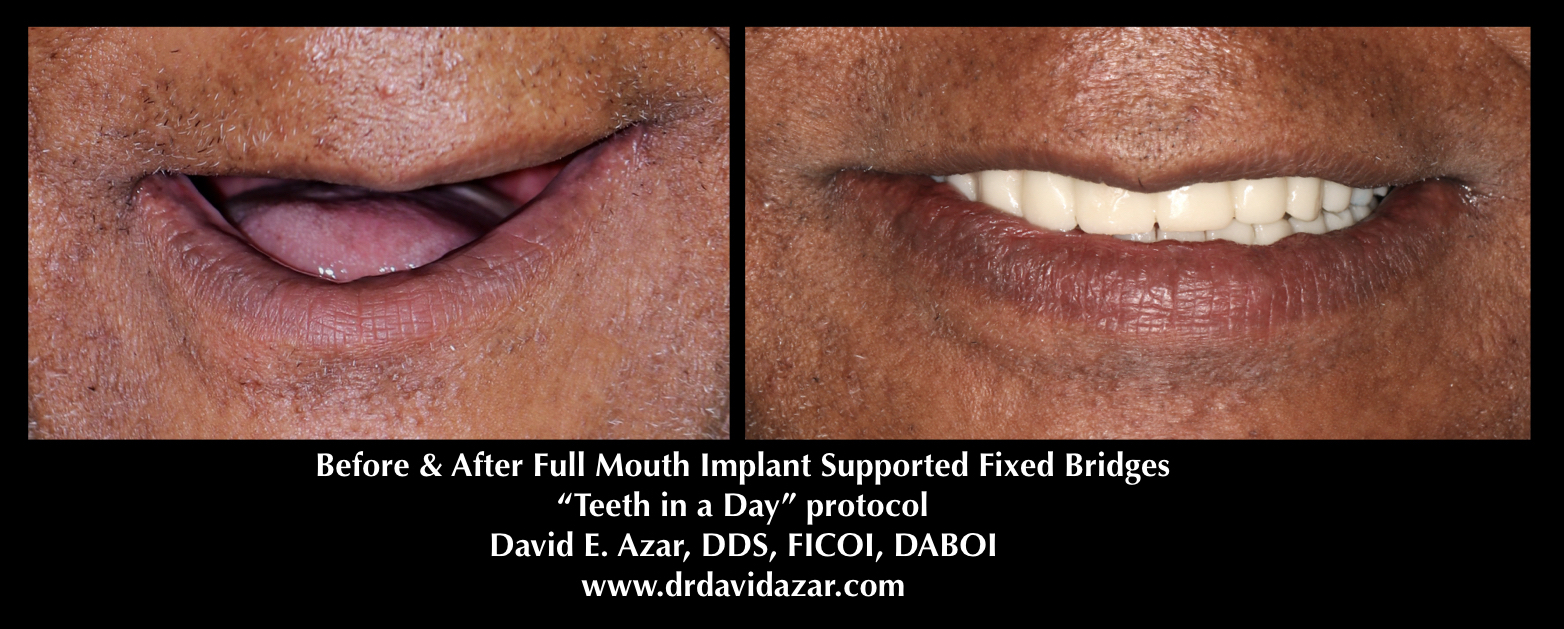 Financial District Dental Implants