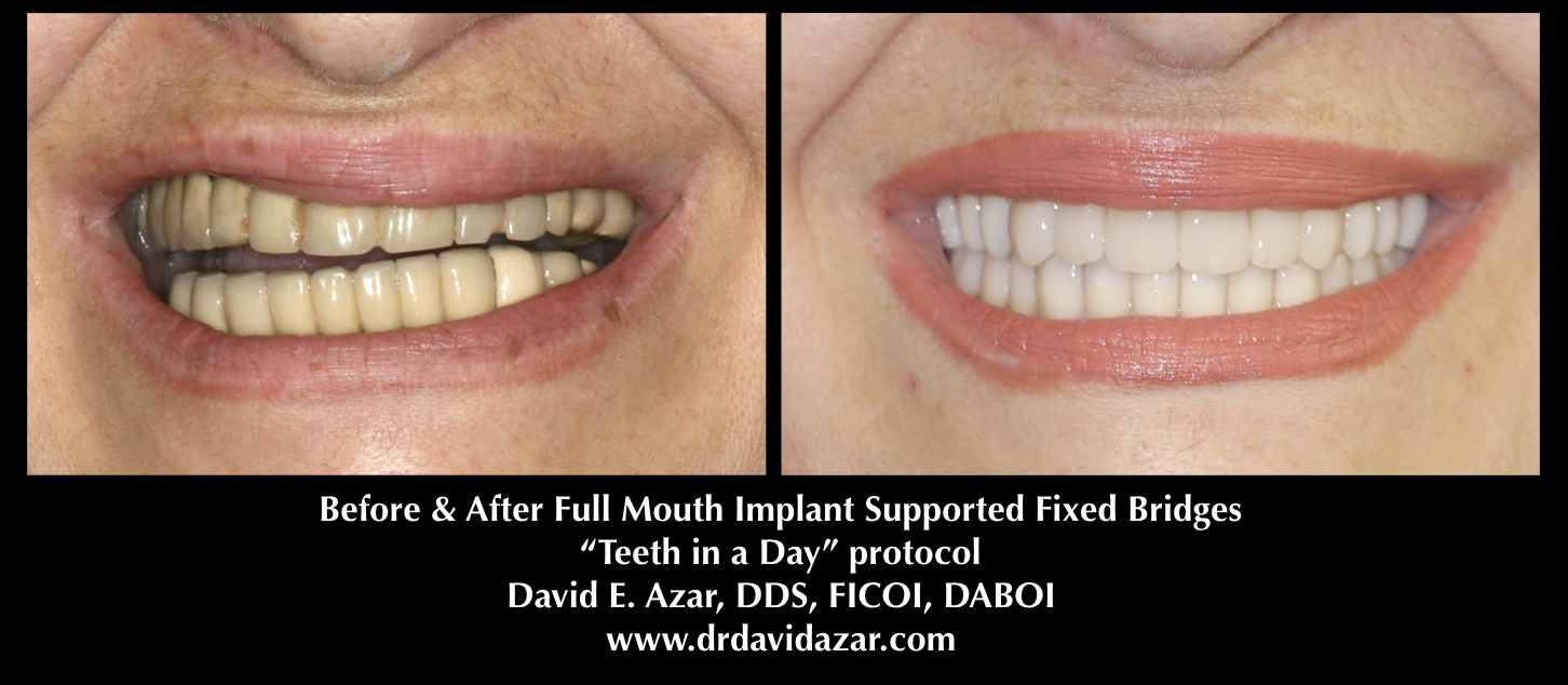 Dental Implants in Financial District