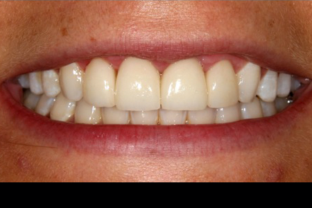 Before and After Porcelain Veneers in Financial District