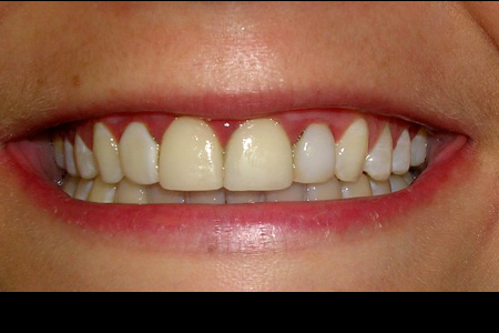 Financial District Before and After Porcelain Veneers